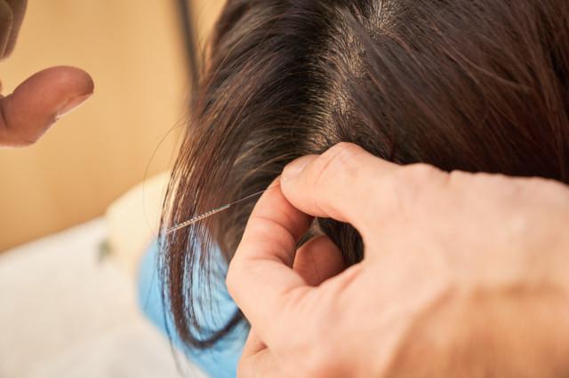 鍼治療のイメージ