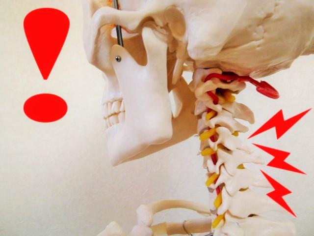 首の痛みの原因