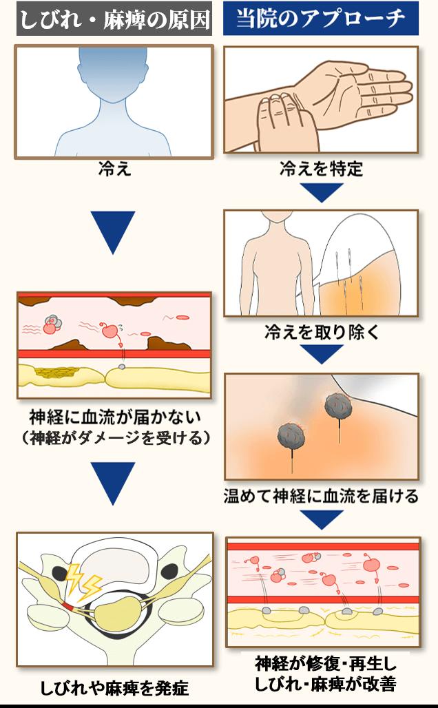 頚椎症の原因とアプローチ