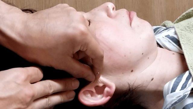 突発性難聴に対する末梢神経再生施術