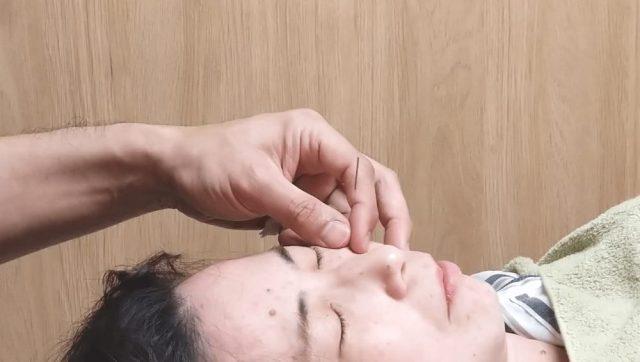 顔面に対する末梢神経再生施術