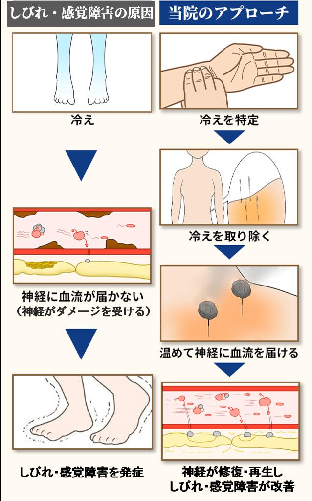 モートン病の原因と当院のアプローチ