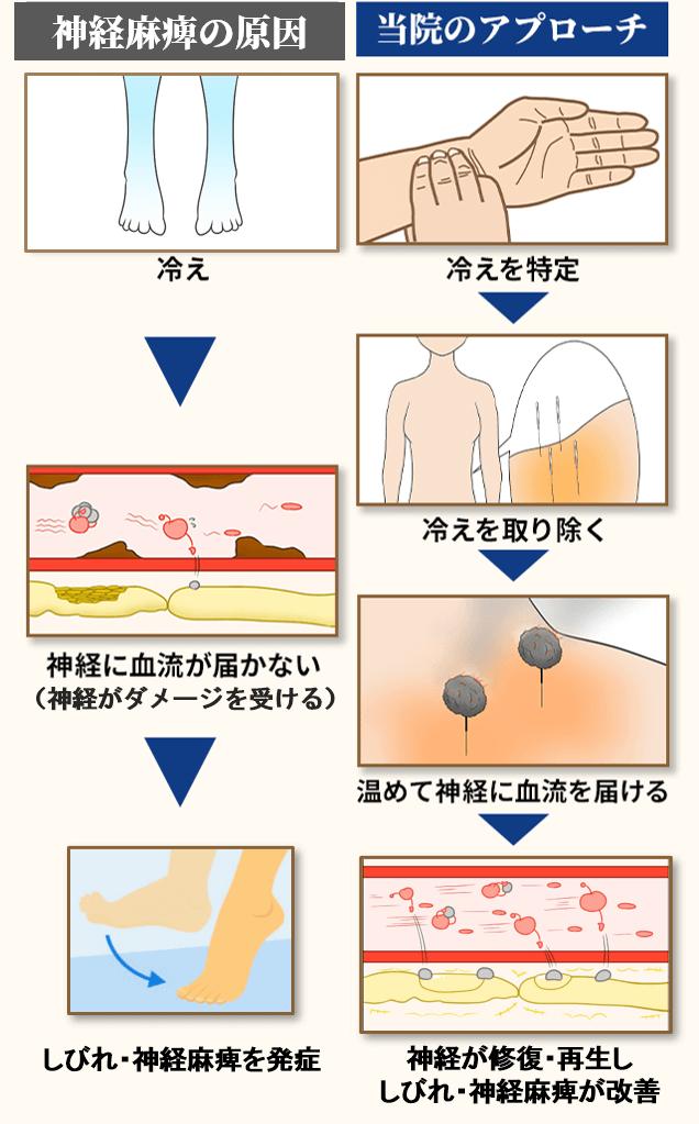 腓骨神経麻痺の原因とアプローチ