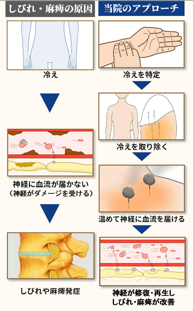 椎間板ヘルニアの原因とアプローチ
