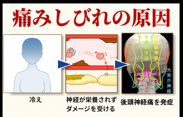 後頭神経痛の発症機序