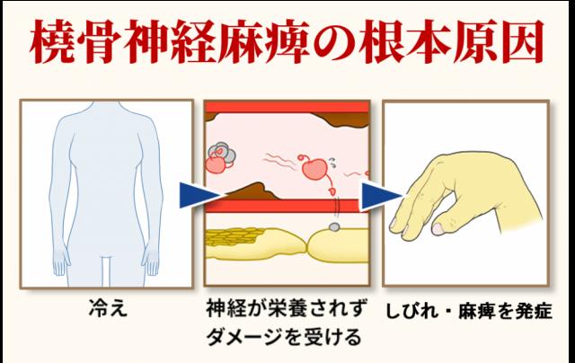 橈骨神経麻痺の根本原因