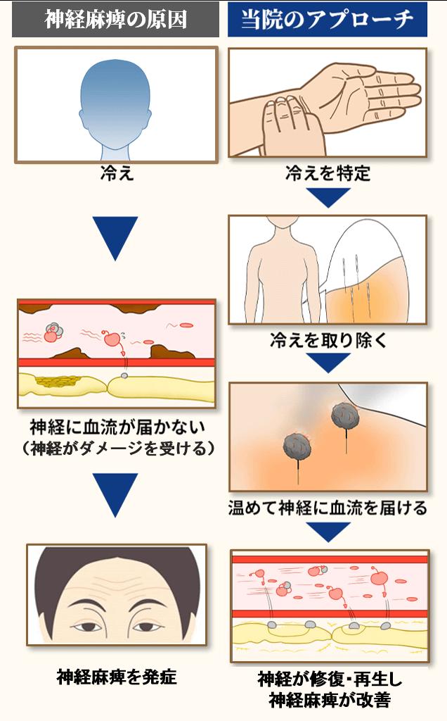 眼瞼下垂の原因とアプローチ