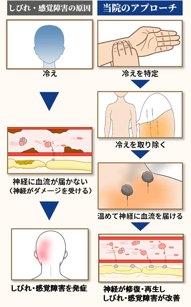 後頭部痛の原因とアプローチ