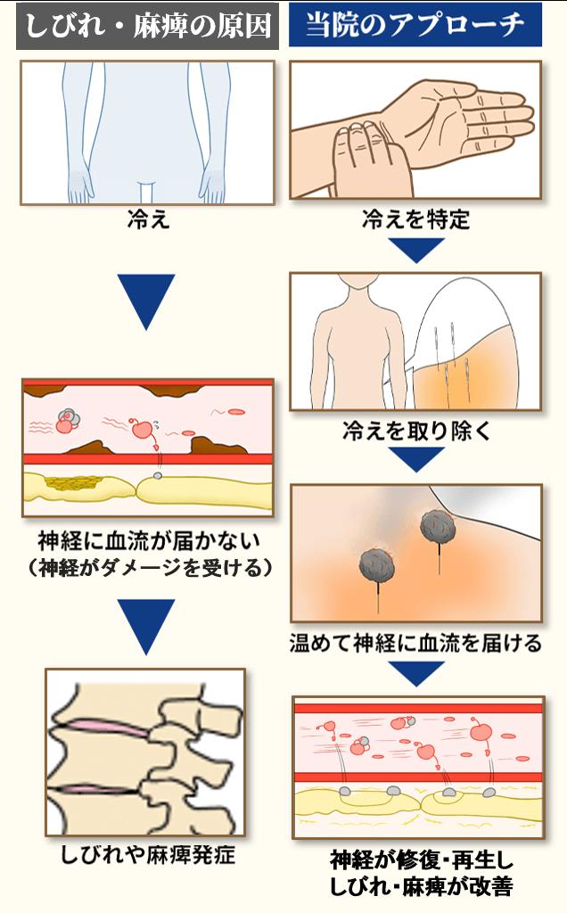 変形性腰椎症の原因とアプローチ