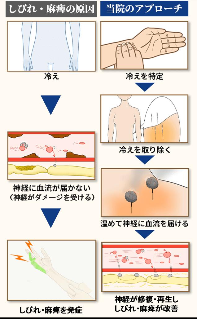 肘部管症候群の原因とアプローチ