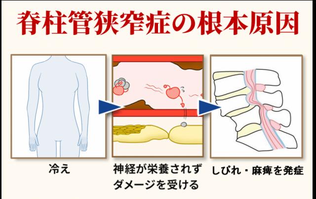 脊柱管狭窄症の根本原因