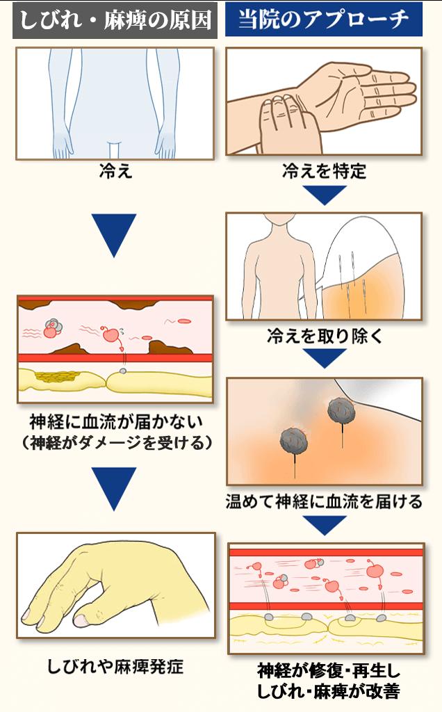 橈骨神経麻痺の原因とアプローチ