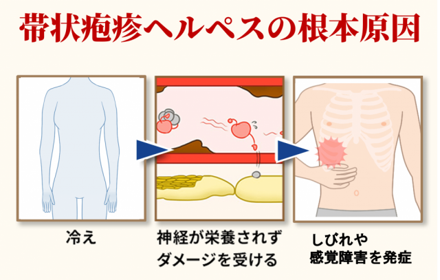 帯状疱疹ヘルペスの根本原因