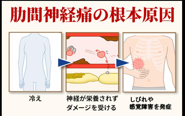 肋間神経痛の根本原因