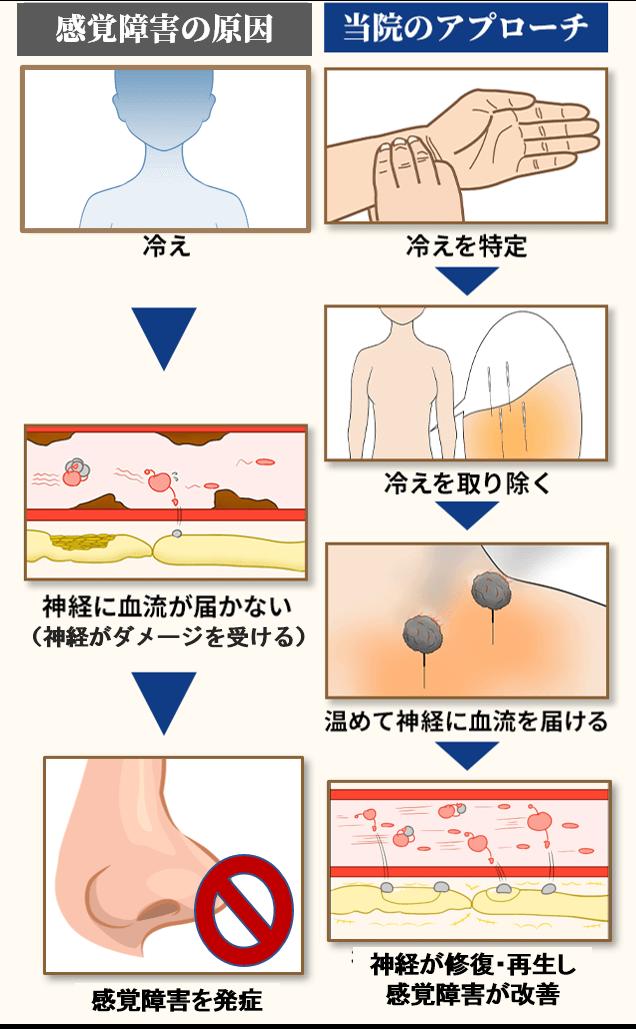 嗅覚障害の原因とアプローチ