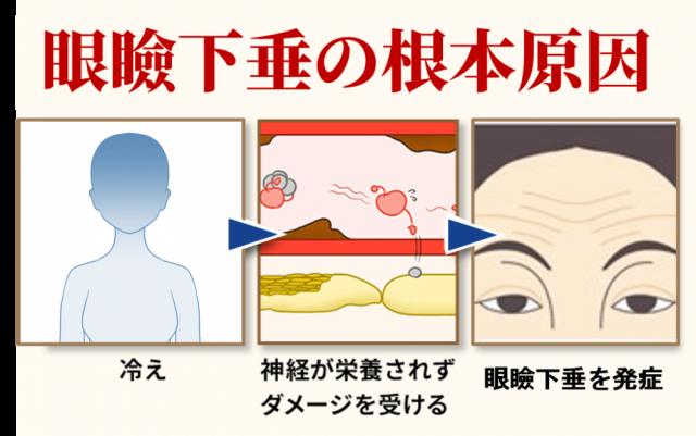 眼瞼下垂の発症機序