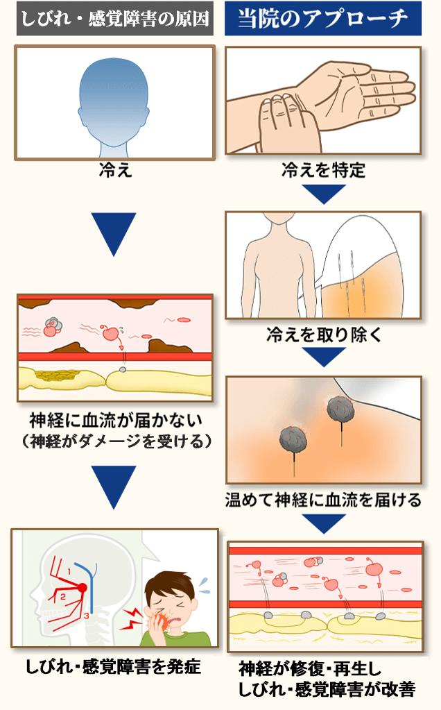 三叉神経痛の原因と当院のアプローチ