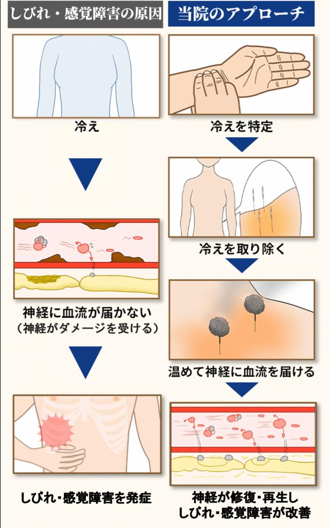 肋間神経痛の原因とアプローチ