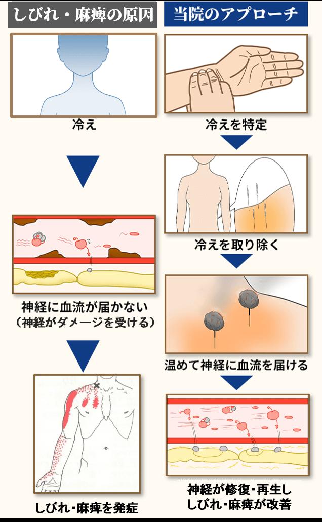 胸郭出口症候群の原因とアプローチ