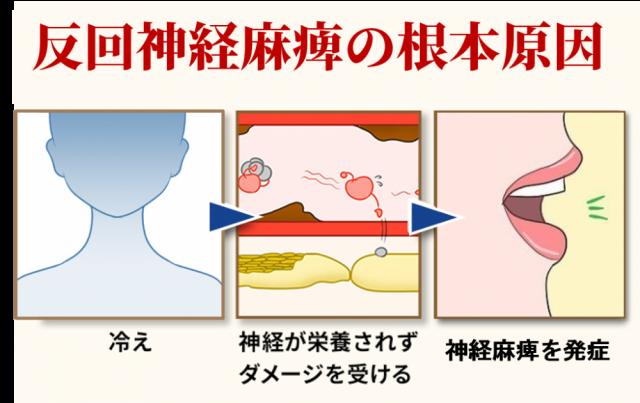 反回神経麻痺の根本原因