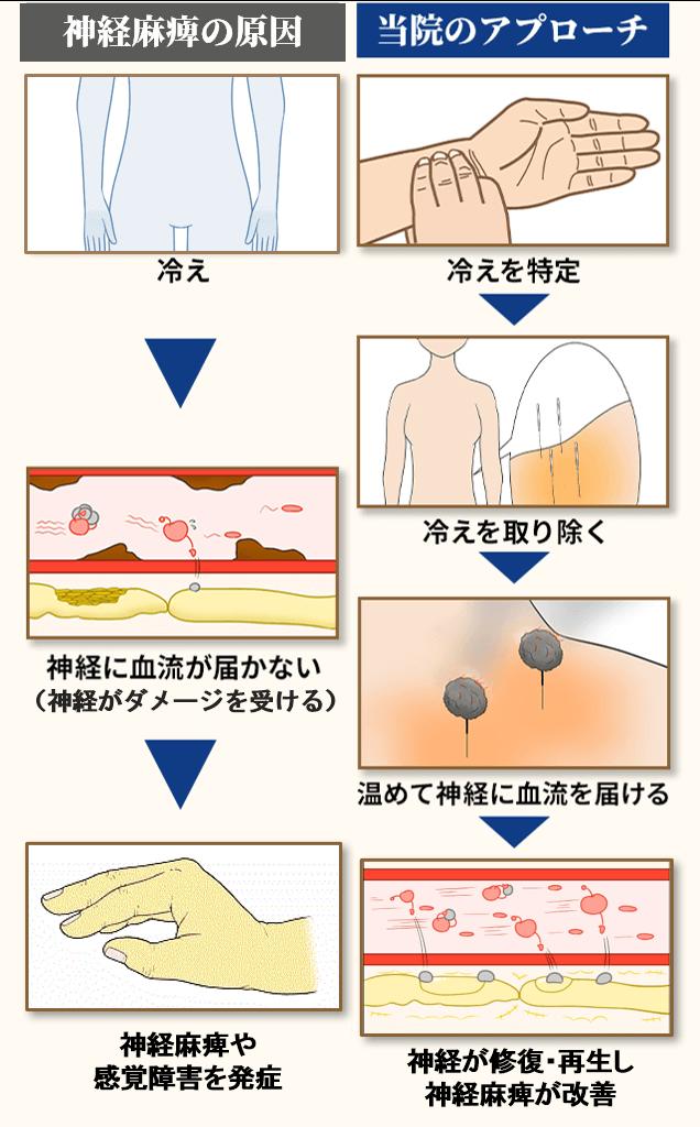 骨間神経麻痺の原因とアプローチ