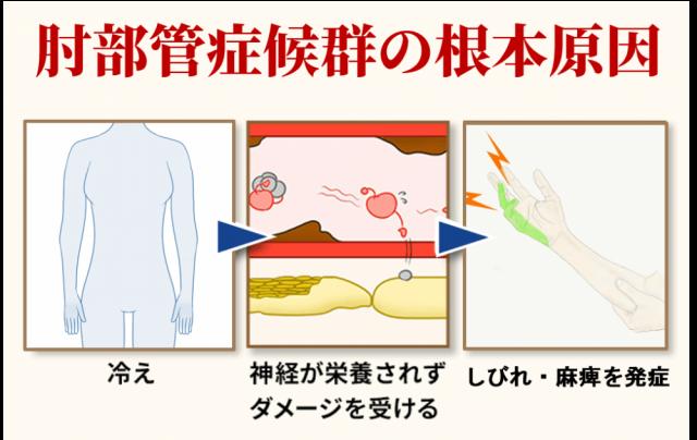 肘部管症候群の根本原因
