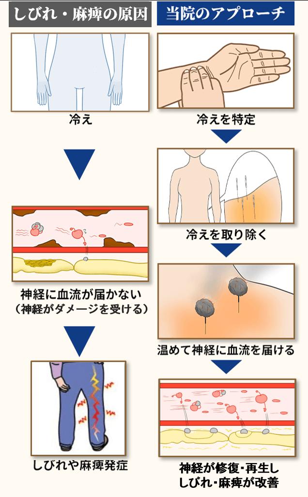 坐骨神経痛の原因とアプローチ