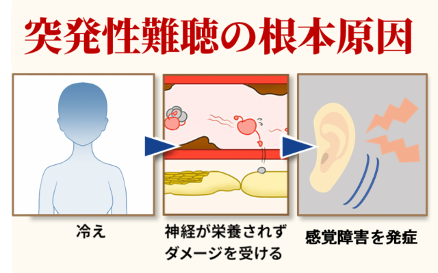 突発性難聴の根本原因