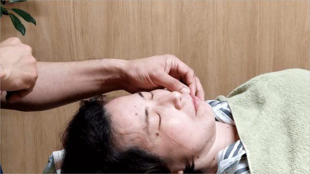 味覚障害に対する末梢神経再生施術