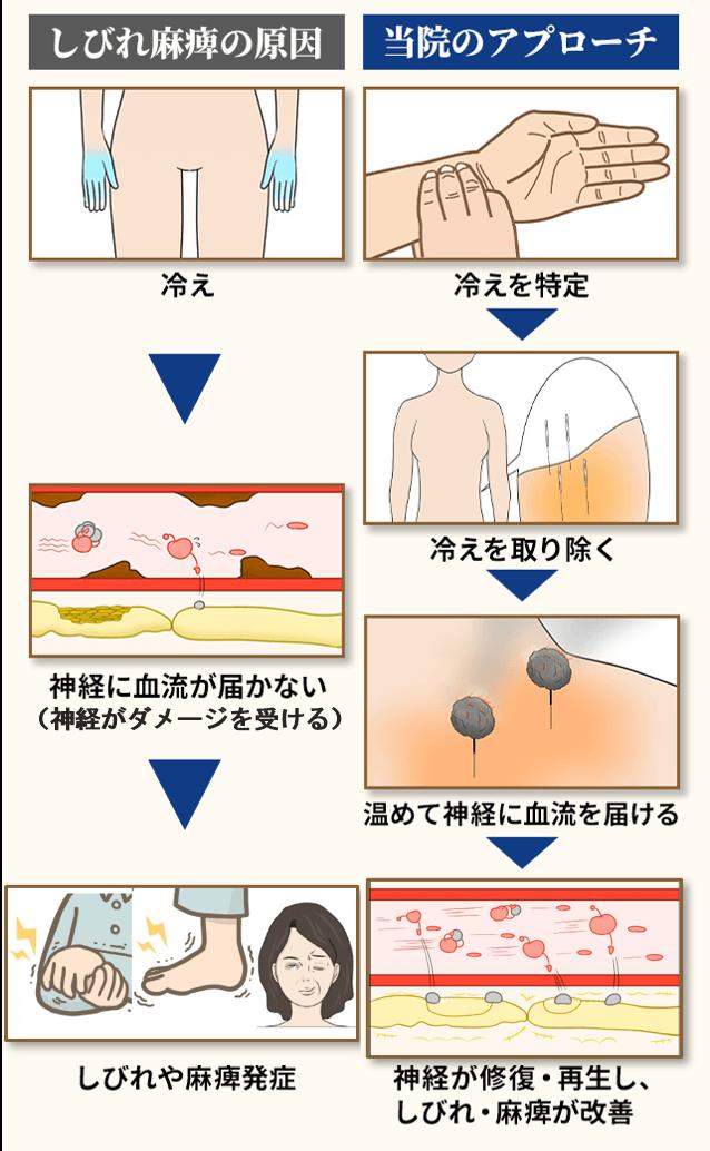 しびれ・麻痺の原因と当院のアプローチ