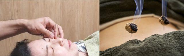 神経の修復再生を促す専門施術
