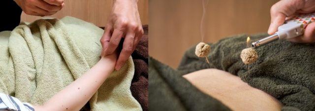 神経の再生・修復を促す専門施術